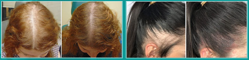 strong hair progressiva